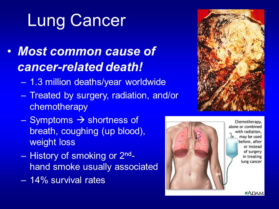 Lung Cancer Most common cause of cancer-related death!
