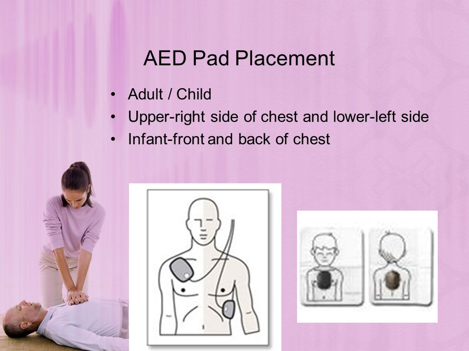 19 aed pad placement