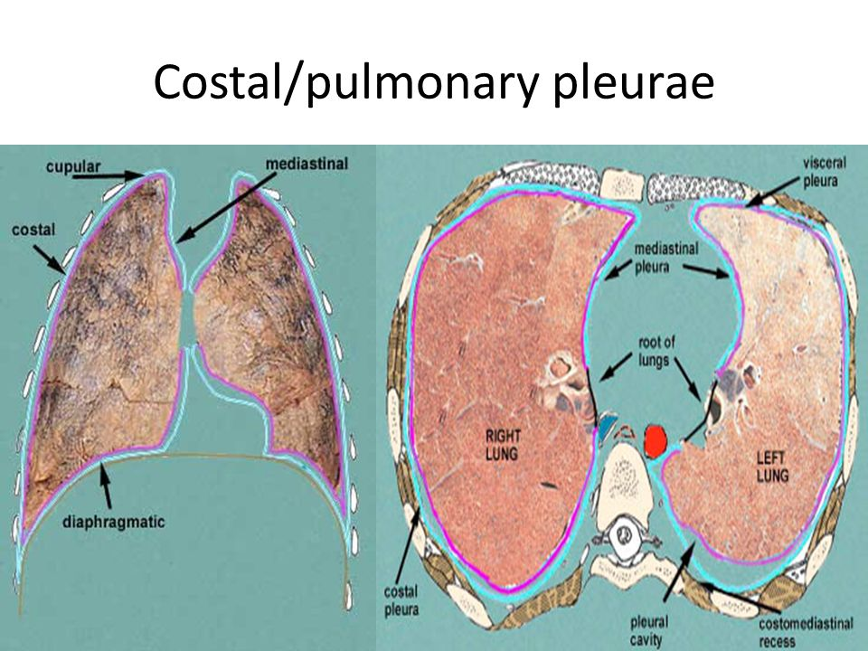 Gross Anatomy Of Lungspleura And Mediastinum 1 Ppt Video Online