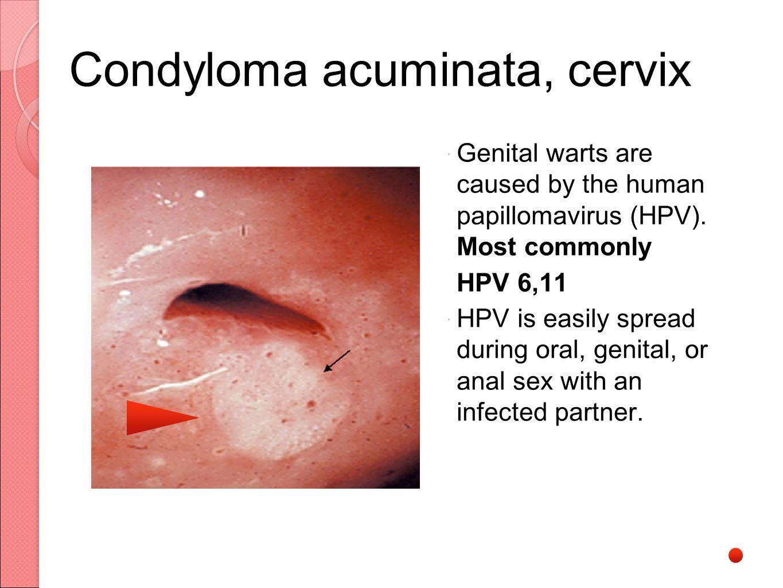 a méhnyak multiplex condyloma