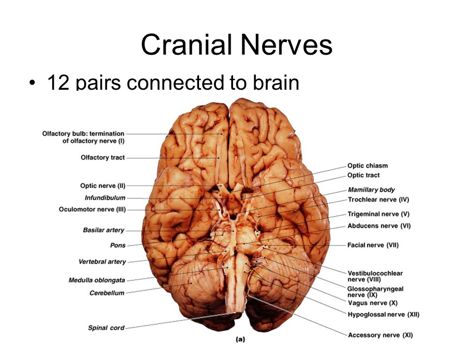 Cranial Nerves & Brain dissection - ppt video online download