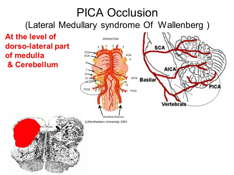 Stroke syndromes of posterior circulations - ppt video online download