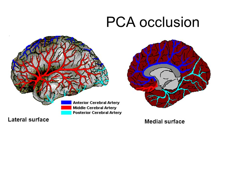Stroke syndromes of posterior circulations - ppt video ...