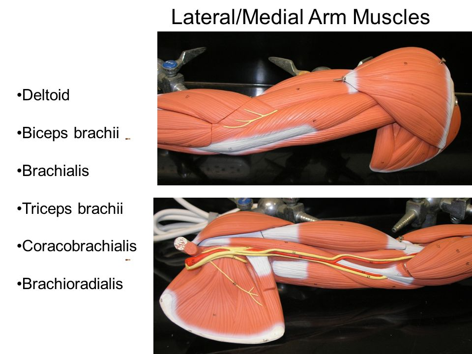 Gross Anatomy of the Muscular System Arm and Leg Muscles - ppt video ...