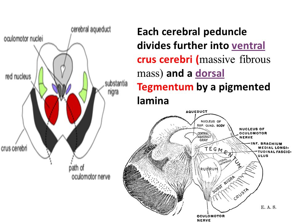 Dorable Cerebral Peduncle Anatomy Images - Anatomy And Physiology ...