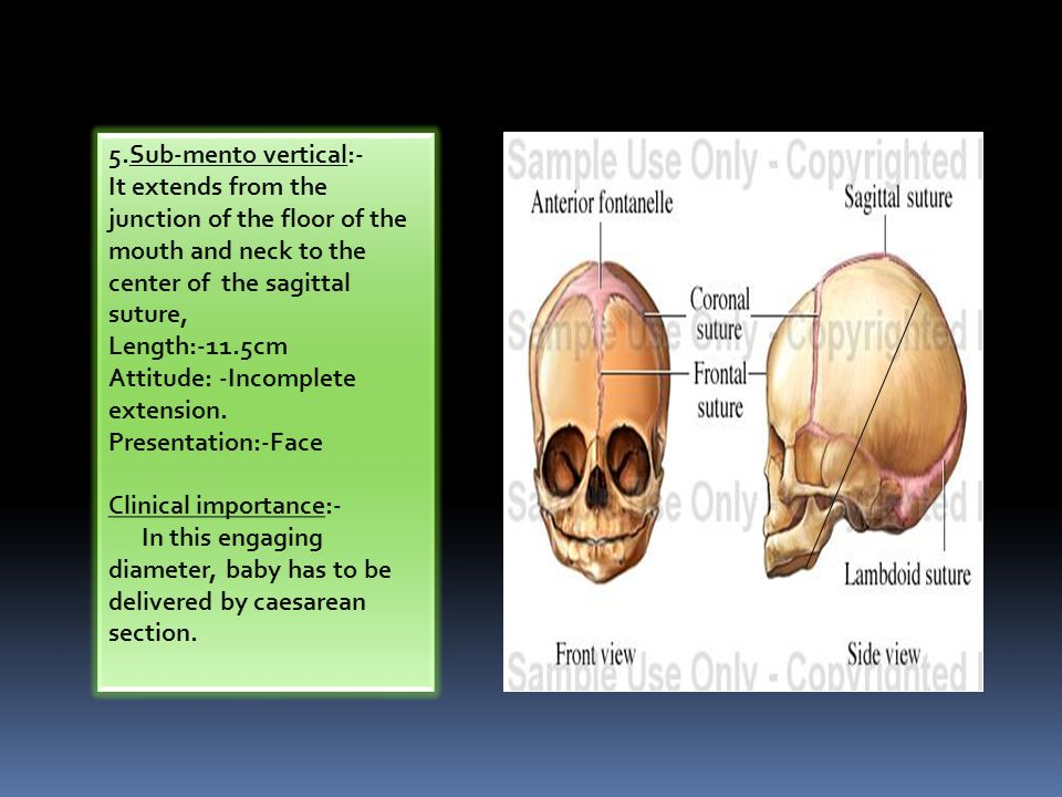 Fetal skull and maternal pelvis - ppt video online download