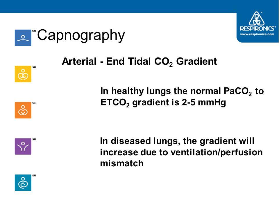 End Tidal CO2 (EtCO2) Monitoring ppt - Marcus Reid
