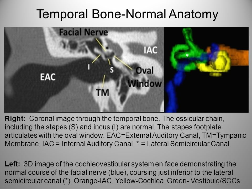 Congenital Temporal Bone Anomalies An Embryologic Approach Ppt
