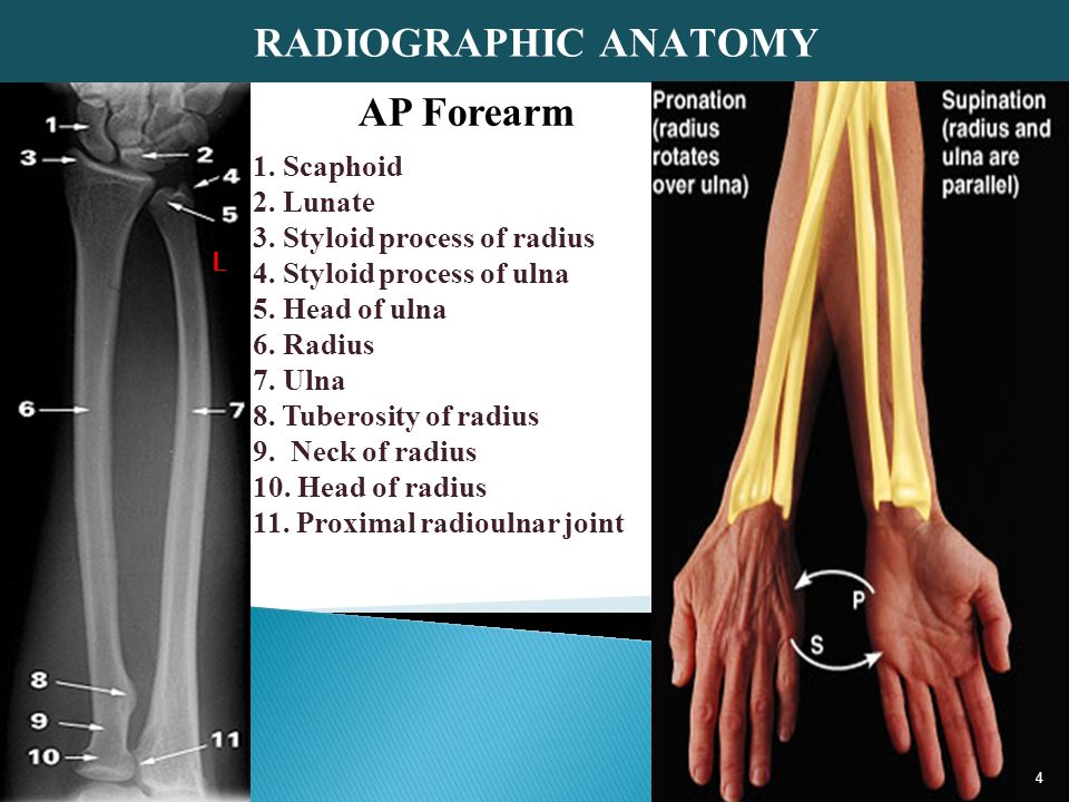 Upper extremity part 2 (forearm, elbow,humerus) - ppt video online ...
