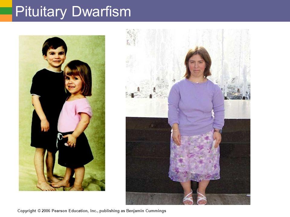 21 pituitary dwarfism