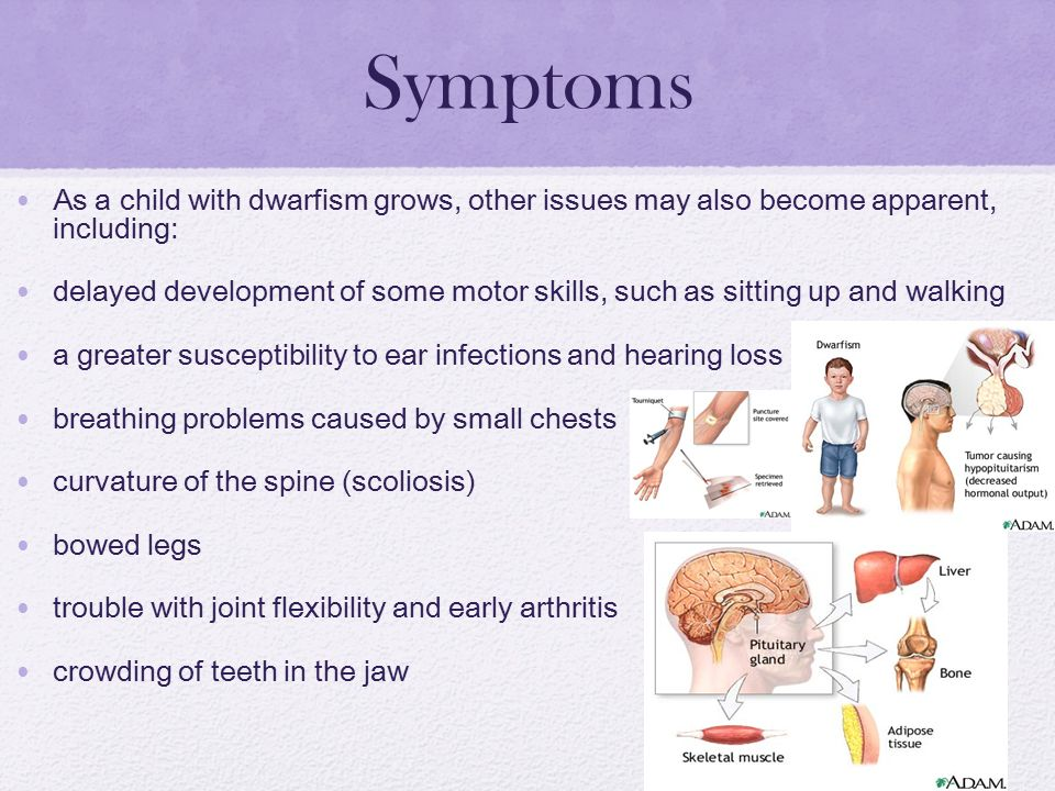 datatable dwarfism symptoms - 960×720
