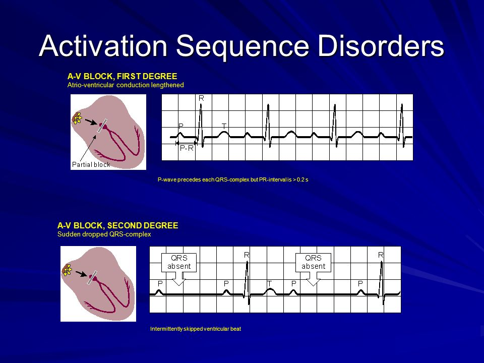 activation sequence disorders