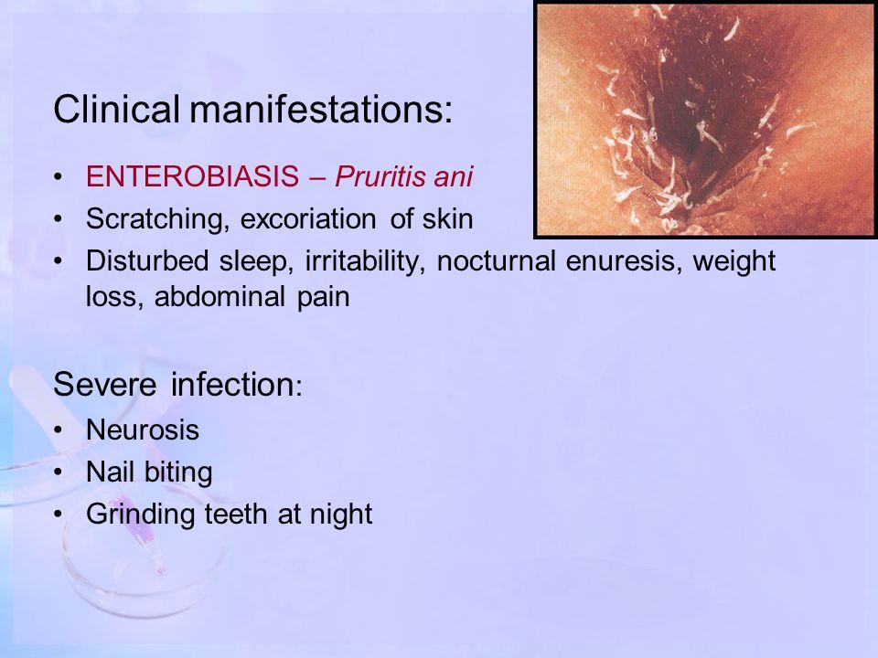 enterobiasis weight loss papilloma sulla lingua come toglierlo