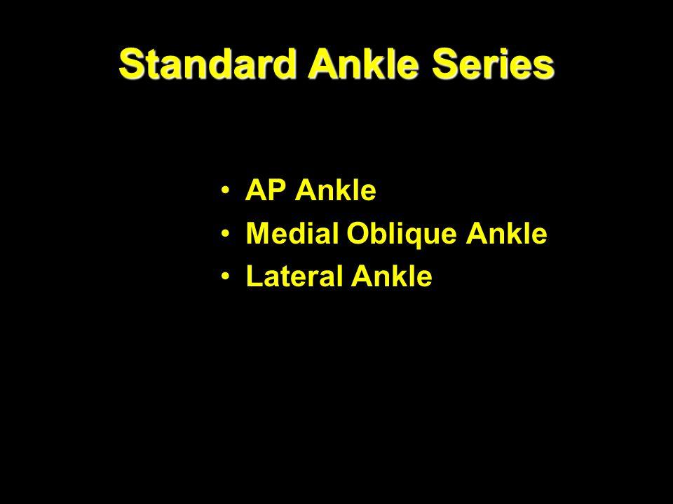 Ankle and foot Saggital slice mri. - ppt video online download