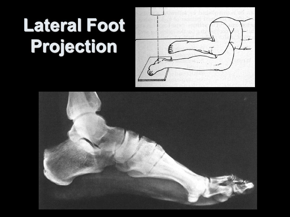 Ankle and foot Saggital slice mri. - ppt video online download