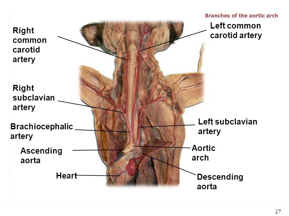 Biology 102 Laboratory 3 Arteries I Human/Cat Gross Anatomy ...