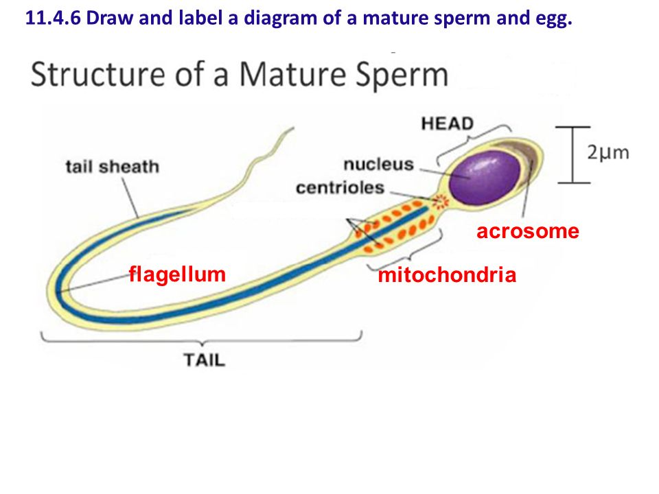 Opinion you label a sperm cell are