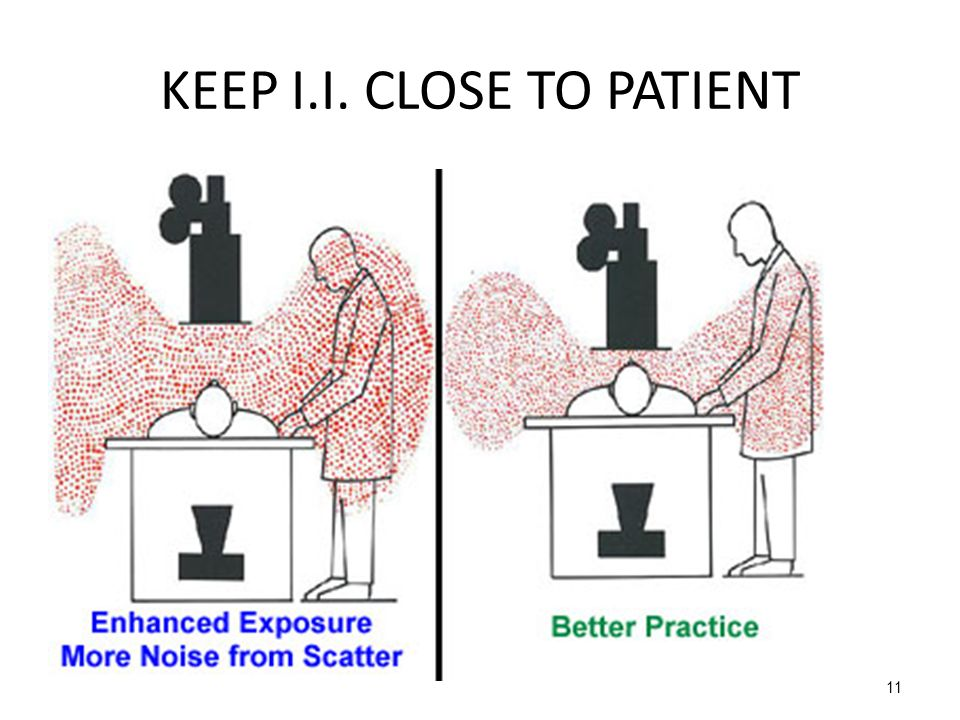 KEEP I.I. CLOSE TO PATIENT