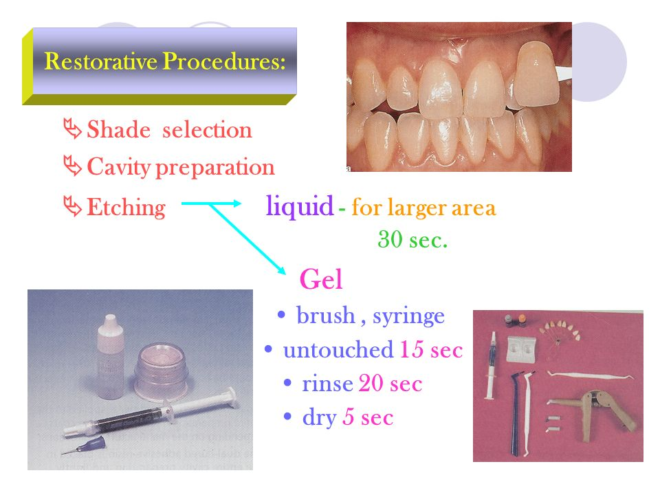 Restorative Procedures: