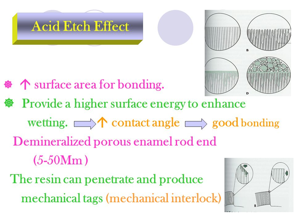 Acid Etch Effect  Provide a higher surface energy to enhance