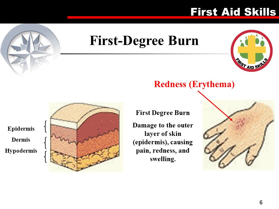 Lesson 5 Burns Firsd Aid Skills  - ppt video online download