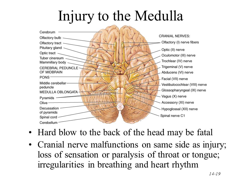 why can damage to the medulla oblongata cause death
