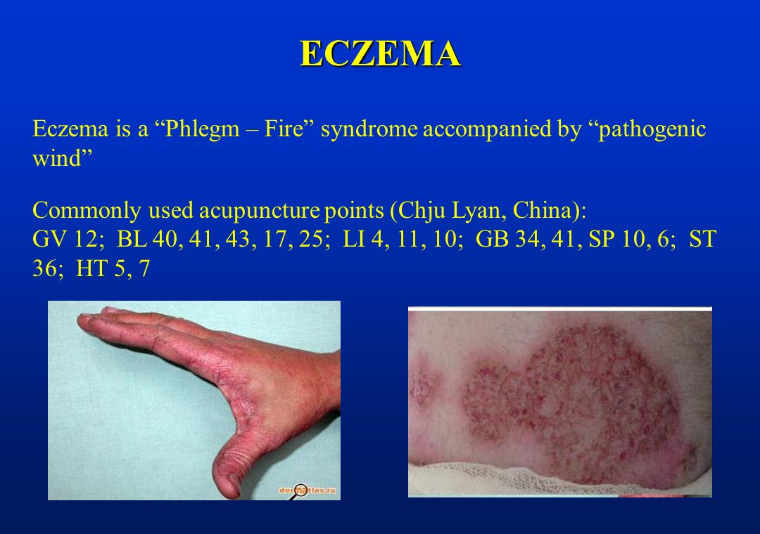 Acupuncture in skin diseases - ppt video online download