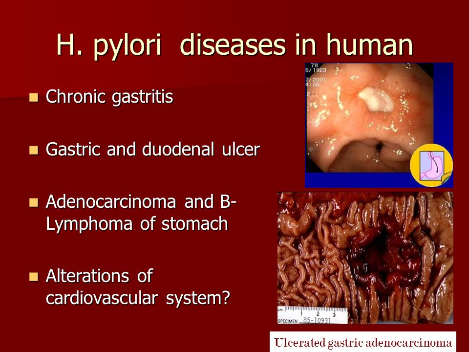 Is h pylori sexually transmitted