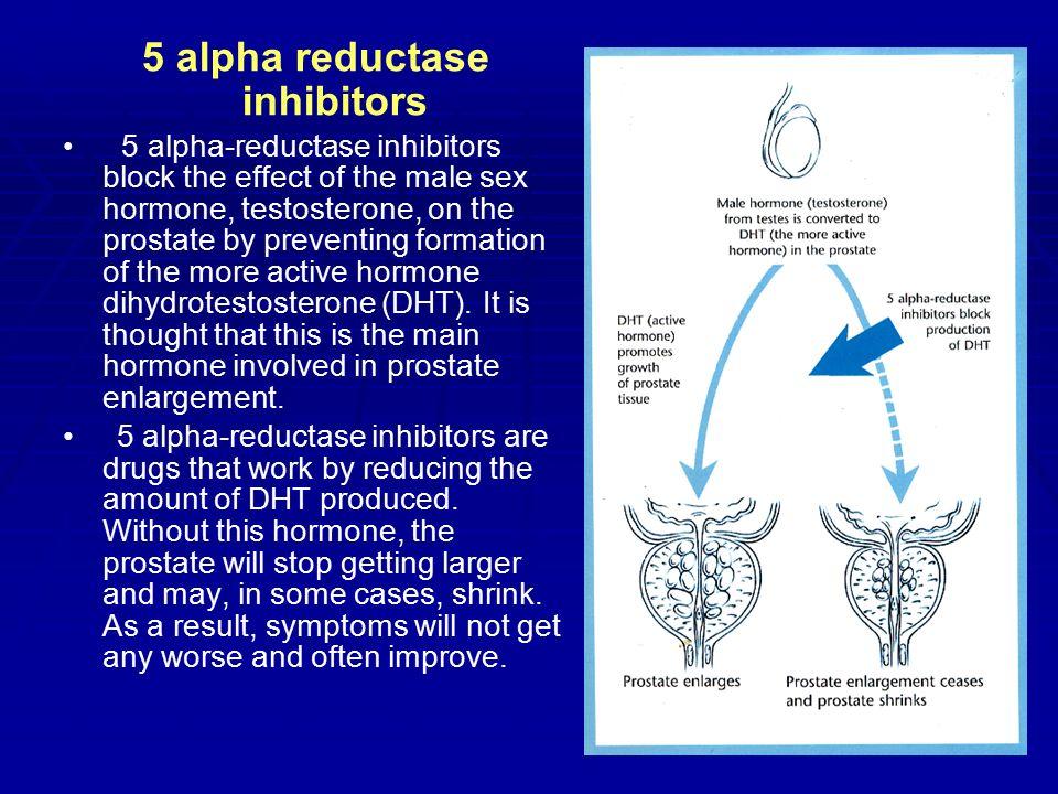 5 Alpha Reductase Inhibitors