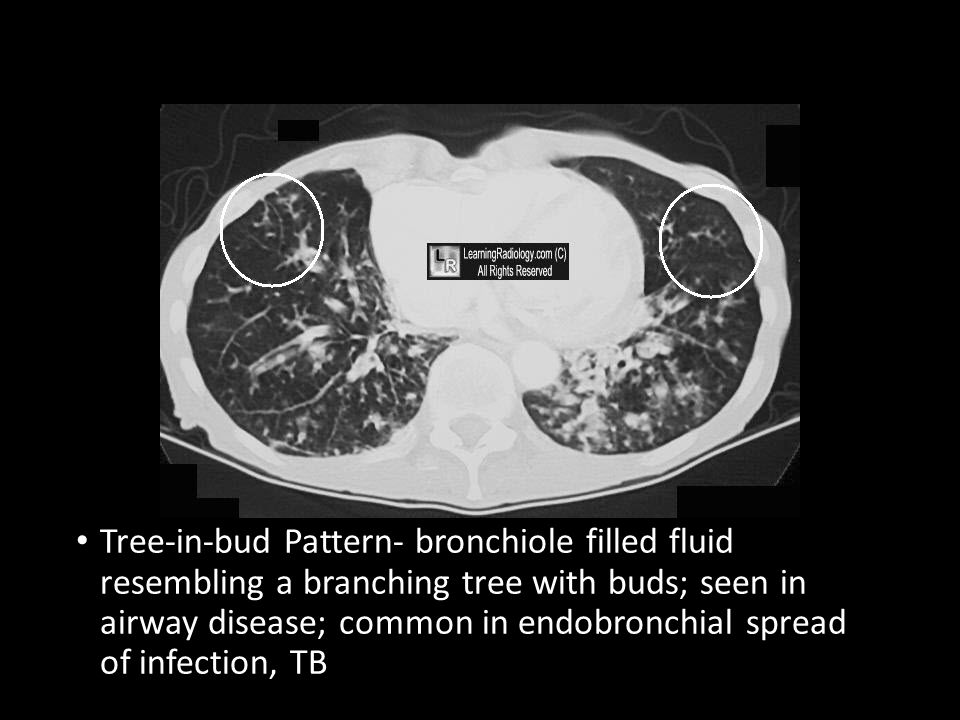 Pulmonary And Cardiovascular Review Ppt Video Online