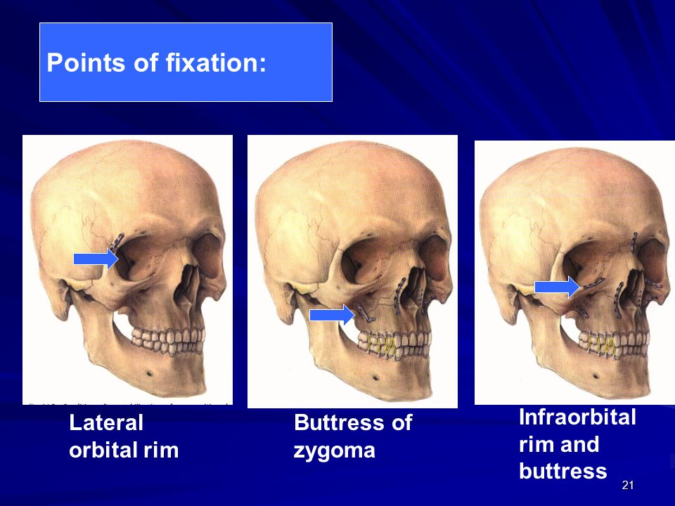 Zygomatic complex fractures - ppt video online download