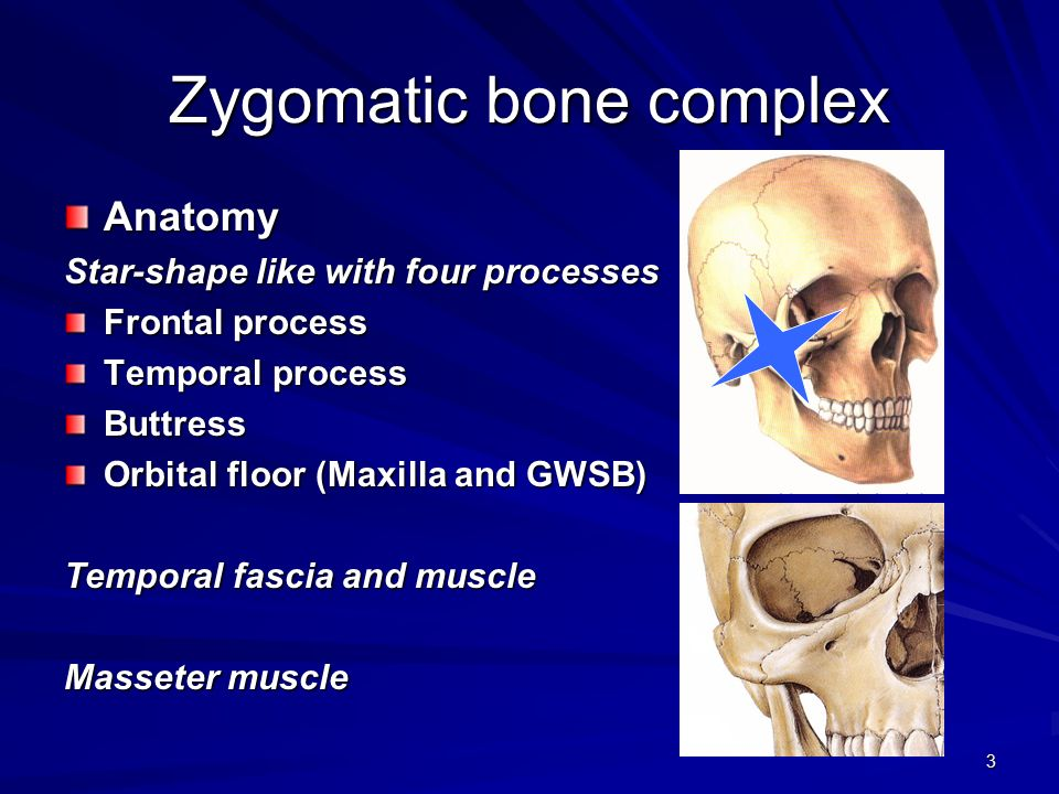 Zygomatic Complex Fractures Ppt Video Online Download