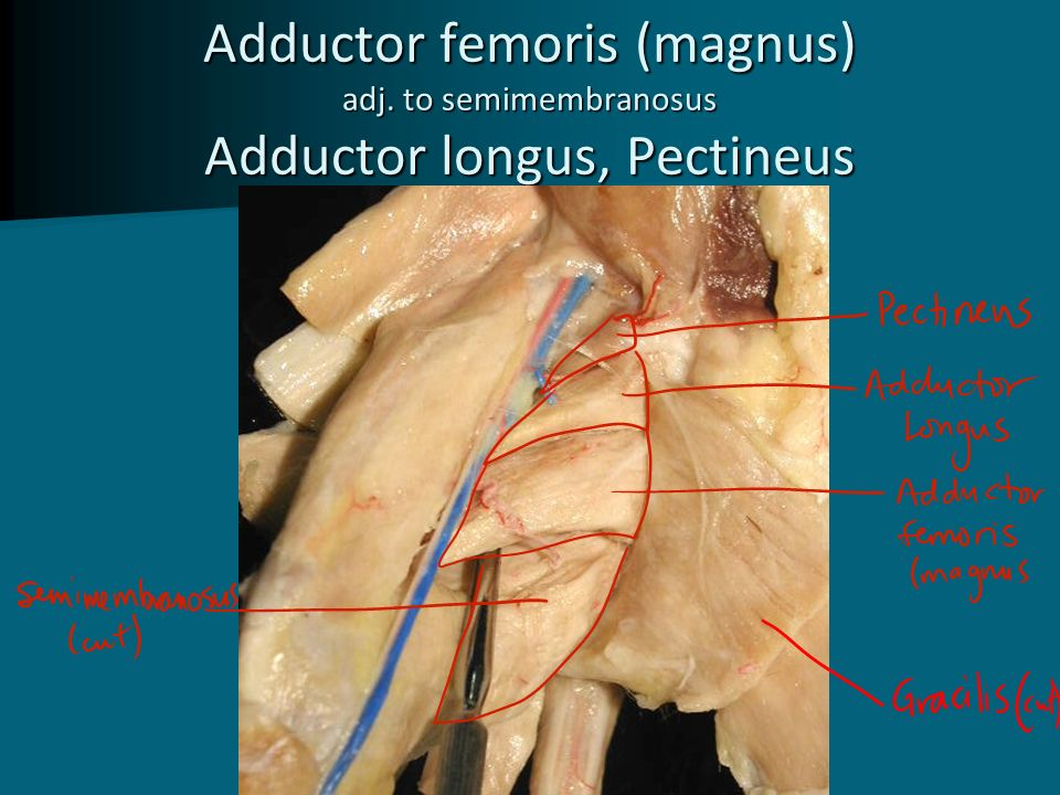 Muscles Of The Anterior Thigh Ppt Video Online Download