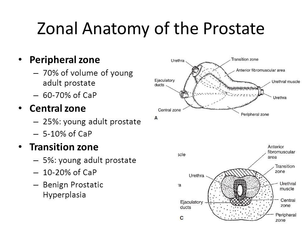 Benign Prostatic Hyperplasia Ppt Video Online Download