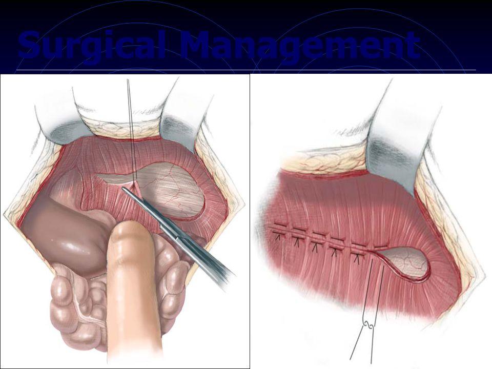 inguinal hernia the british hernia centre - 960×720