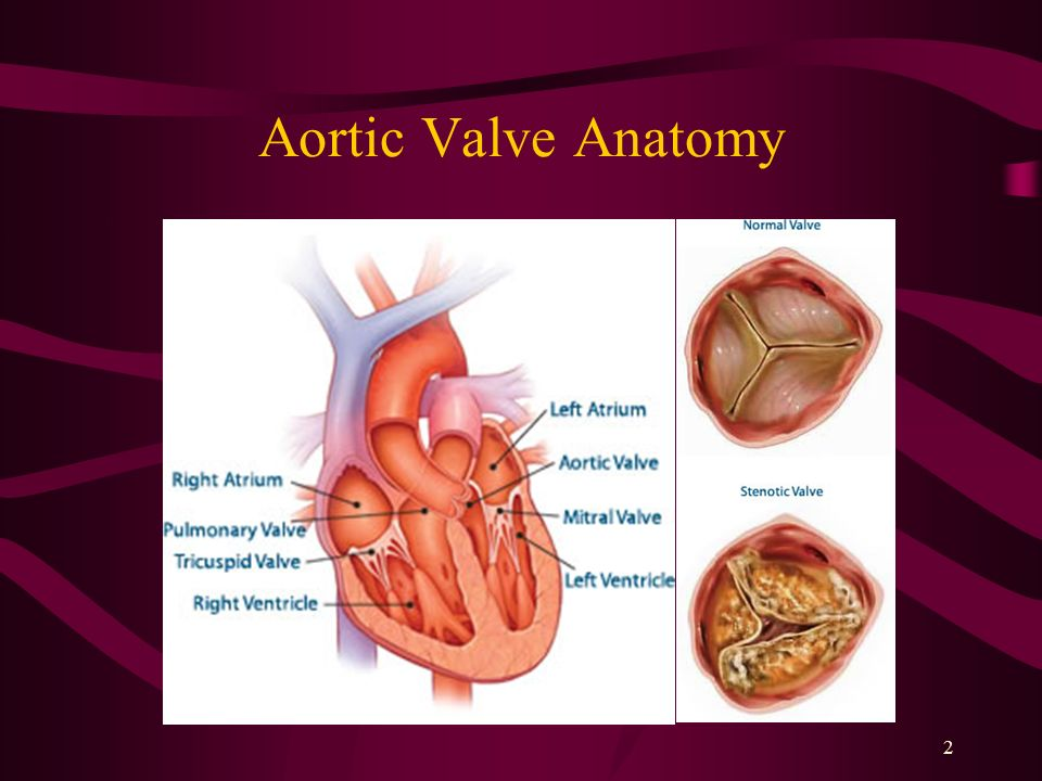 Trancatheter Aortic Valve Implantation (TAVI) - ppt video online ...