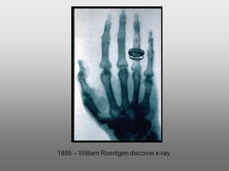 Barbaro X Ray