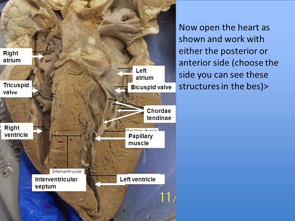 Heart Dissection Tutorial - ppt download