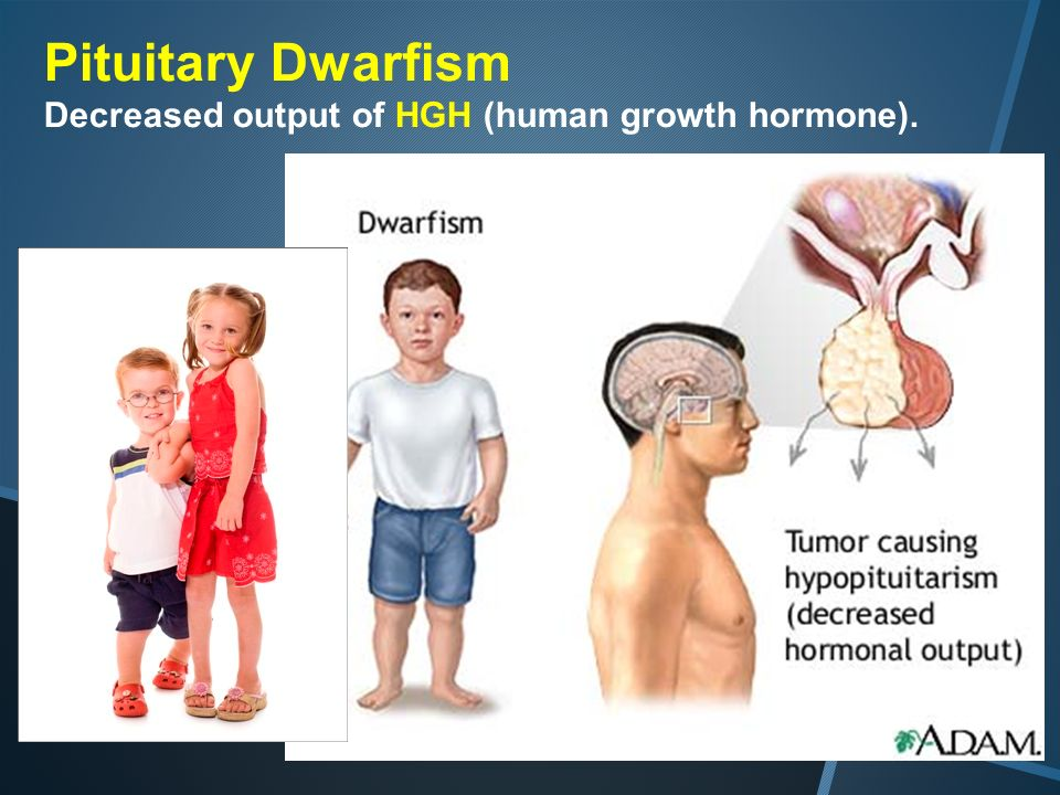 24 pituitary dwarfism decreased output of hgh human growth hormone