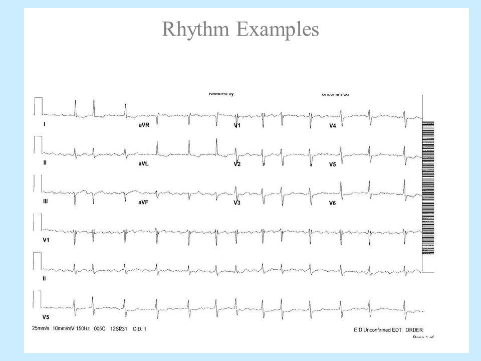 12-lead EKG Interpretation - ppt video online download