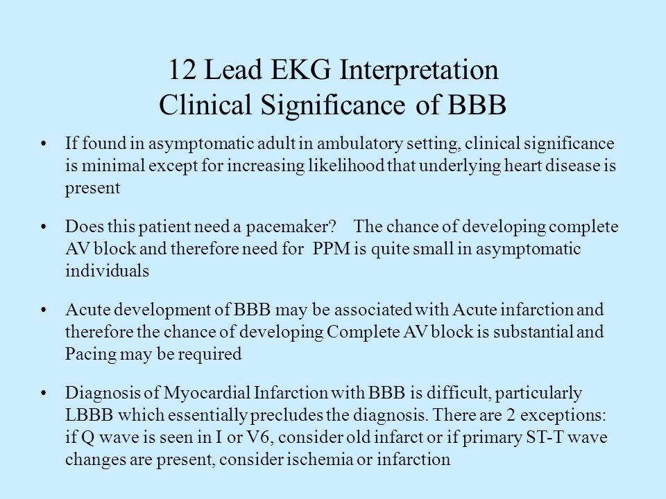 compact clinical guide to arrhythmia and 12lead ekg interpretation