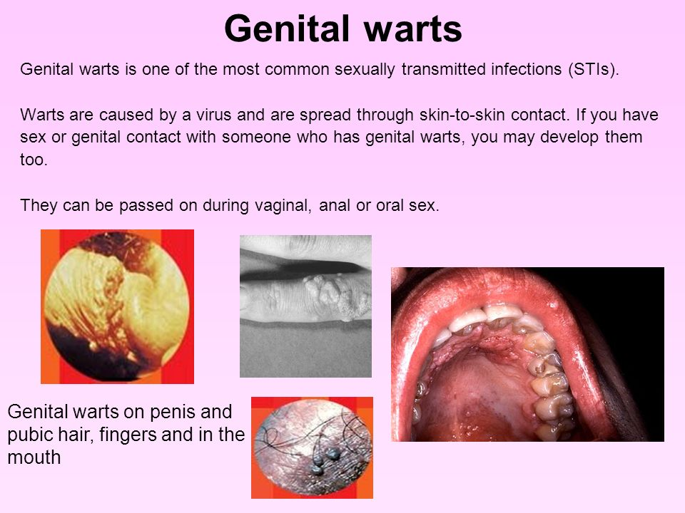 Sexually transmitted disease from oral sex