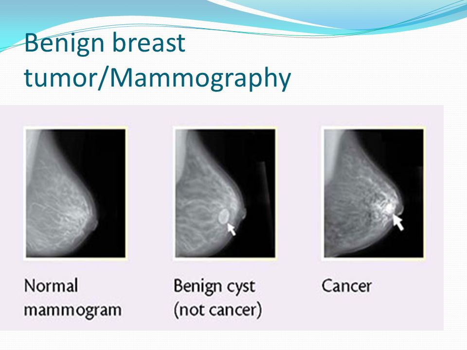 Breast cancer vs cyst