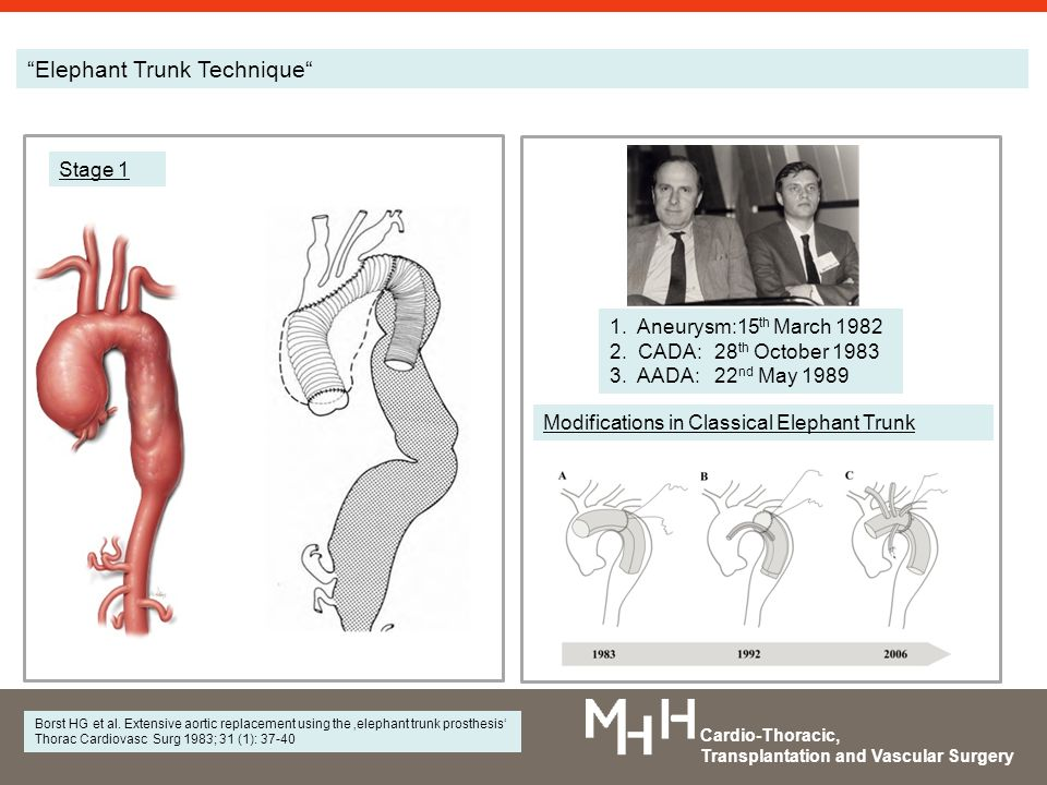 How I would want my Elephant Trunk Procedure to be done. - ppt video ...