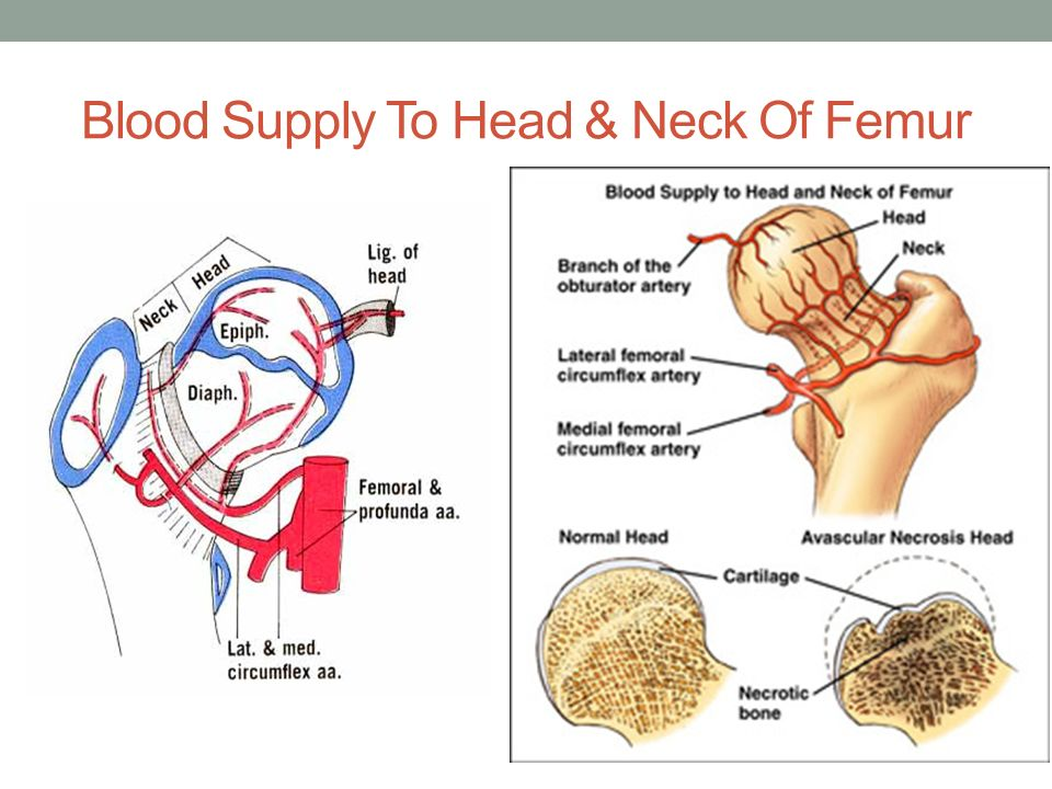 Fracture neck of femur ppt video online download 7 blood ccuart Gallery