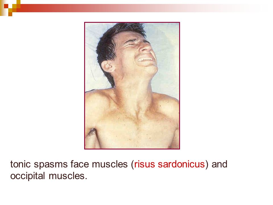 tonic spasms face muscles (risus sardonicus) and occipital muscles.