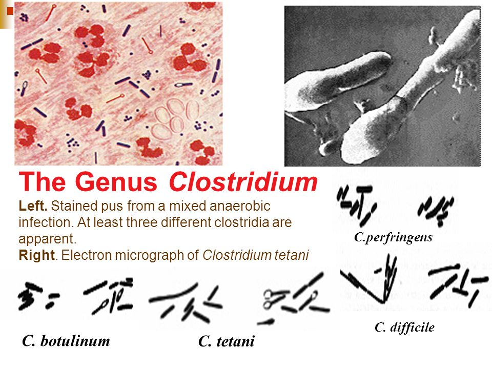 The Genus Clostridium Left