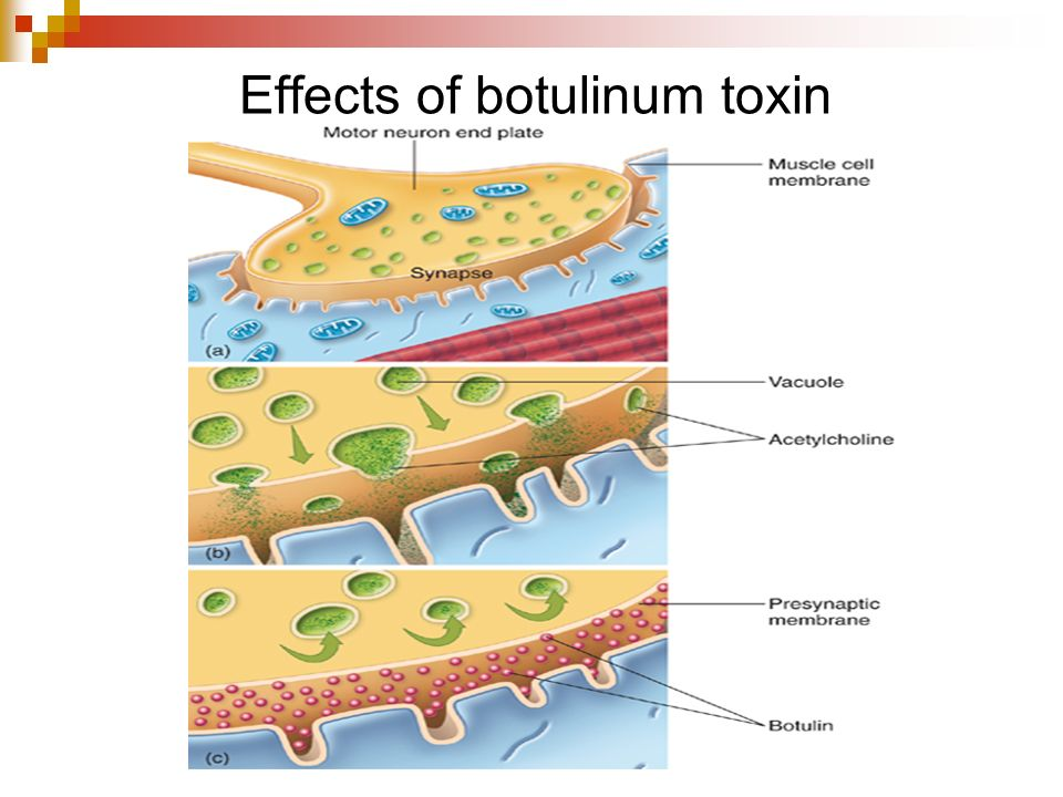 Effects of botulinum toxin