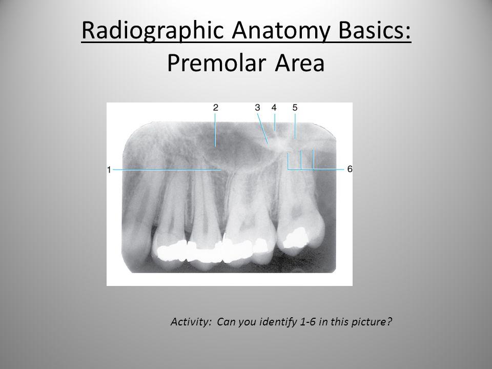 Radiographic Interpretation Review Anatomic Landmarks Caries Bone