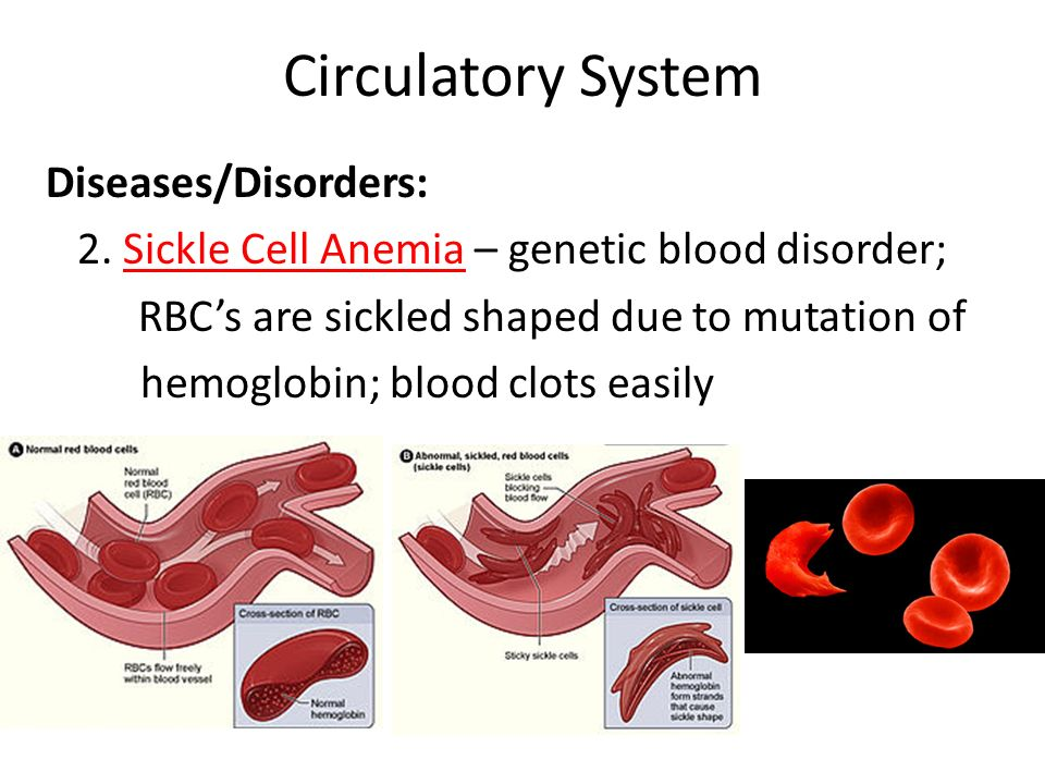 Circulatory System Diseases Fdisorders A